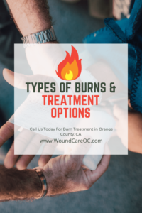 how to treat burns